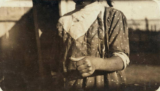 Phoebe's thumb [Phoebe Thomas], a week after the accident. She was back at the factory that day, using the same big knife. Location: Eastport, Maine, August 1911, Lewis Hine.